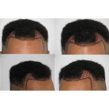 Consultation for the hair transplant